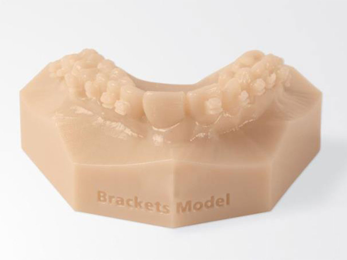Inovativna 3D tehnologija u ortodonciji